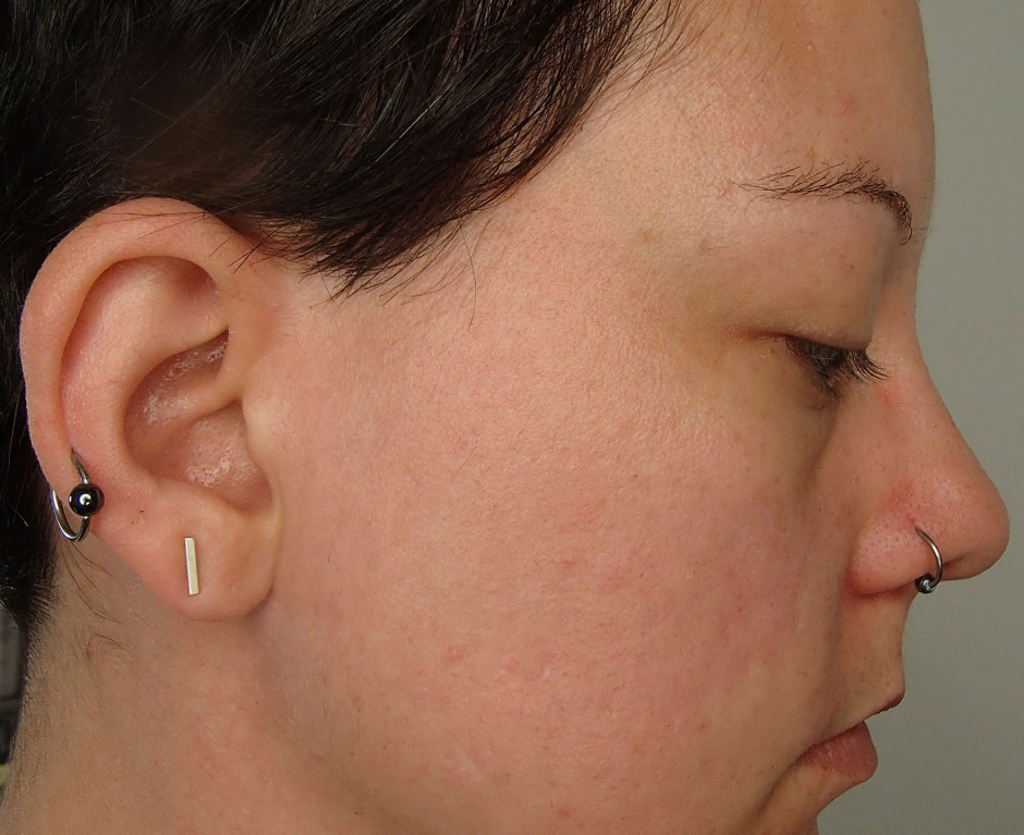 ORG MIneral Peel - after