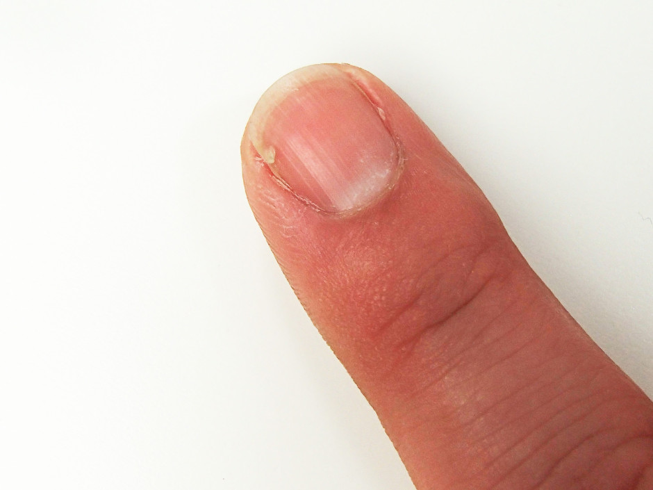 Tutorial - Bandage a cracked nail