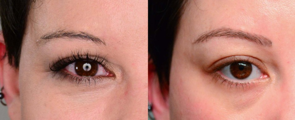 how much does eyebrow tattoo removal cost before and