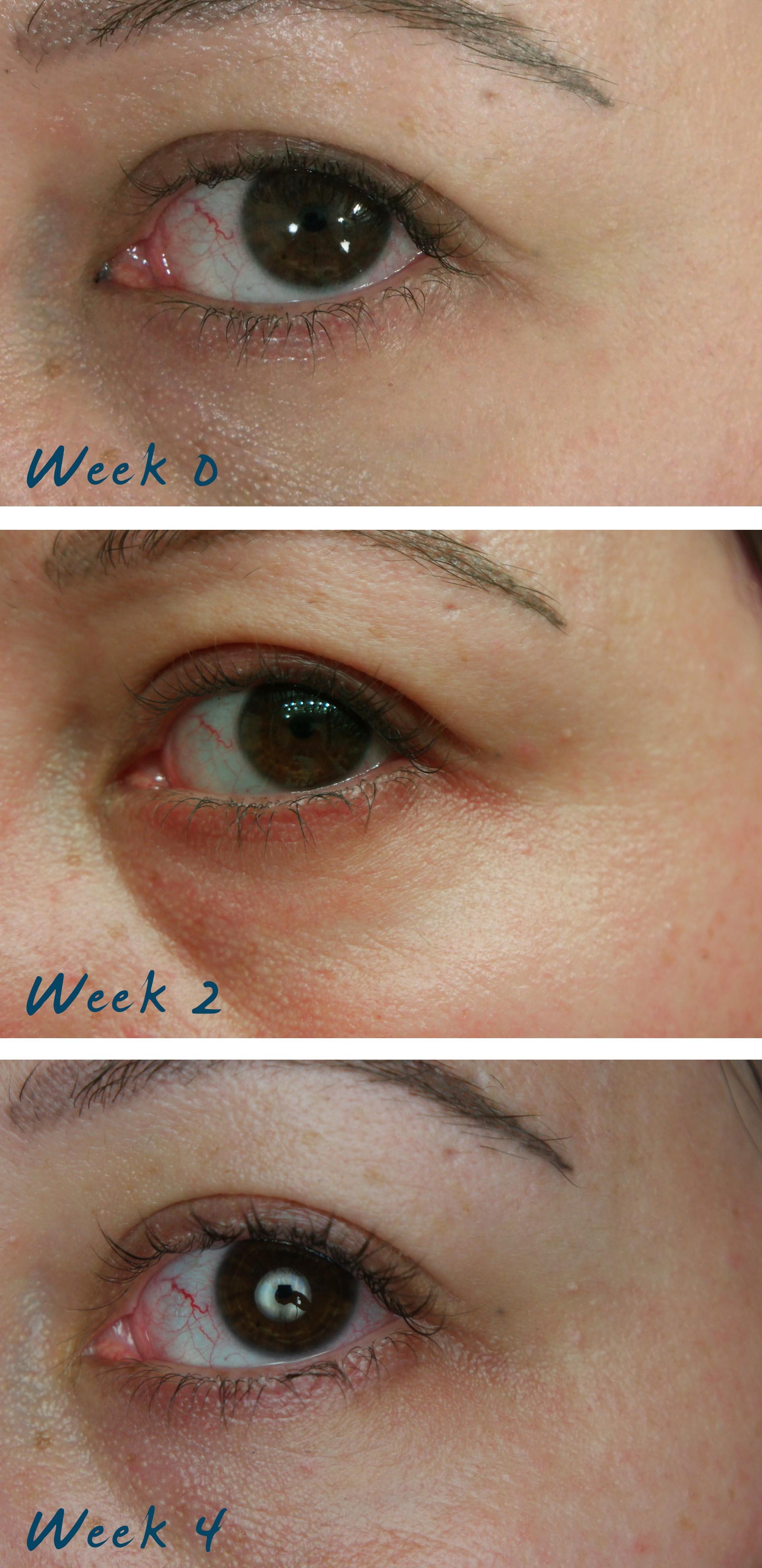 eyes eye part laser - photo #15
