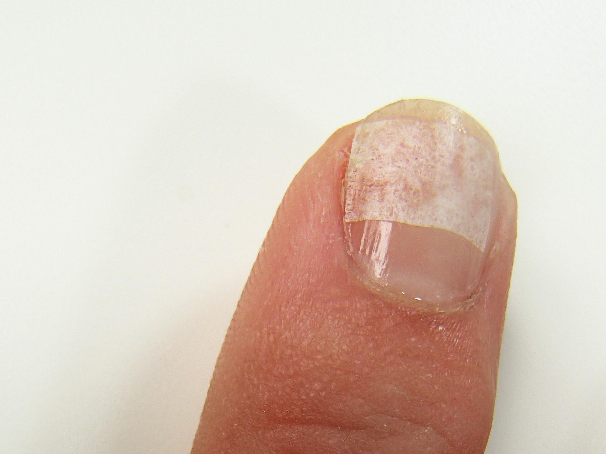 Quick & easy way to bandage a cracked nail | Lipstick Latitude