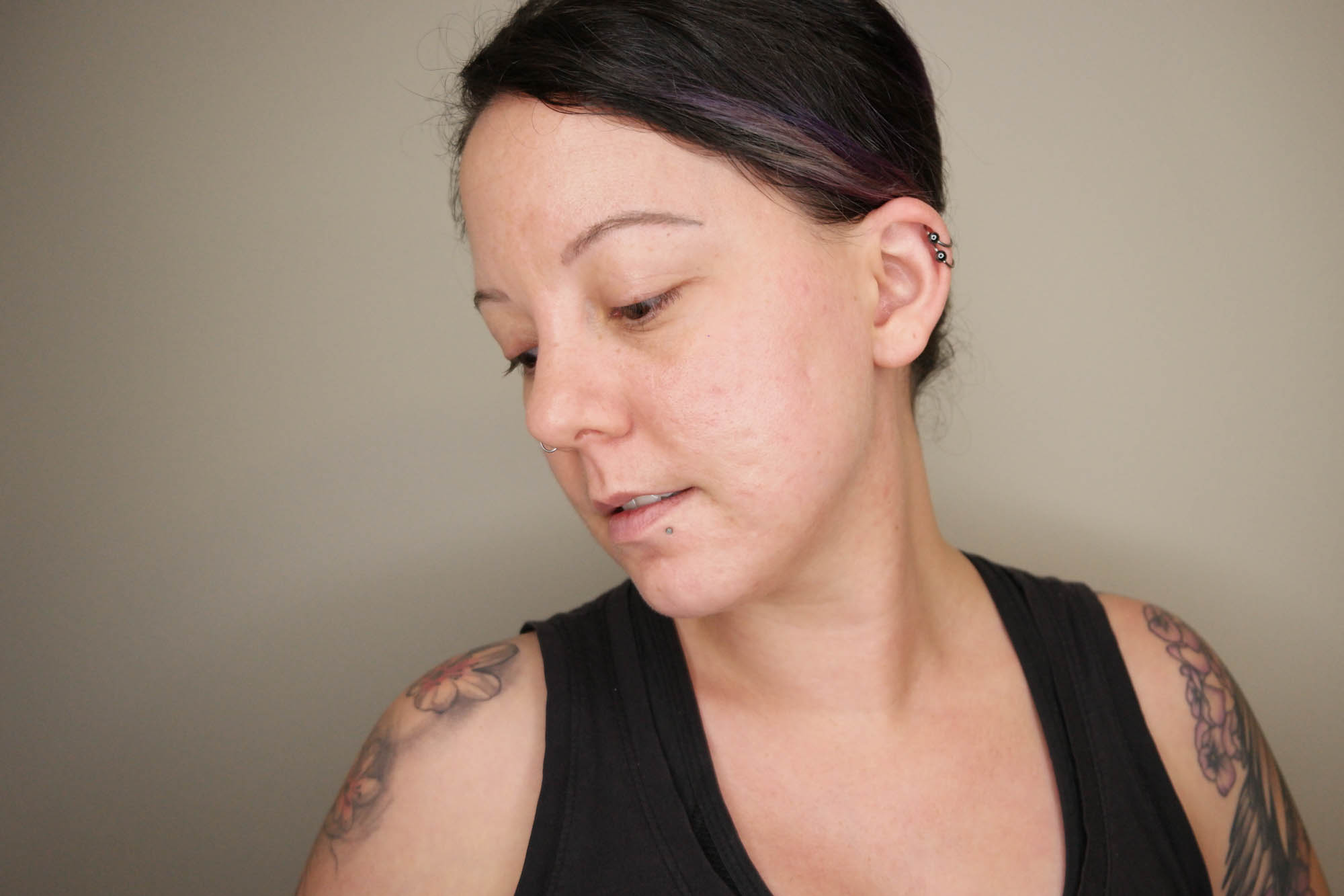 Adding Insult to Injury: Post Inflammatory Hyperpigmentation